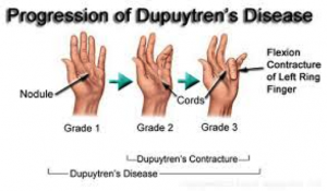 dupuytrens-fasciectomy-dupuytrens