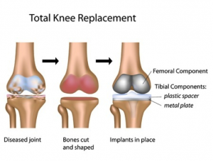 knee-replacement-2