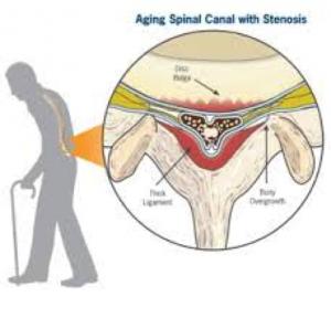 lumbar-spinal-decompression