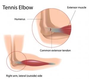 tennis-elbow-surgery