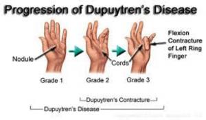 dupuytrens-fasciectomy-dupuytrens