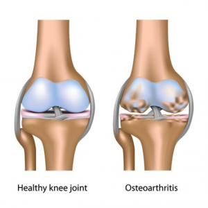 knee-replacement-1