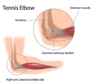 tennis-elbow-surgery